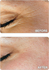 microdermabrasion-before-after-sml.jpg